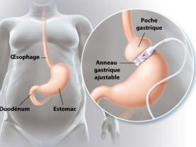 Info, prices & total cost   Gastric Band Surgery