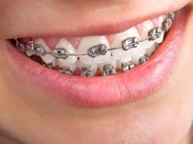 Info, prices & total cost   Braces