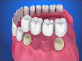 Info, prices & total cost   Dental Bridge
