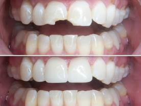 Info, prices & total cost   Tooth crown