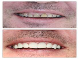 Info, prices & total cost   Dental veneers
