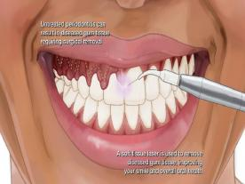 Info, prices & total cost   Gingivectomy