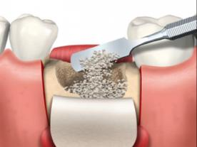 Info, prices & total cost   Bone graft