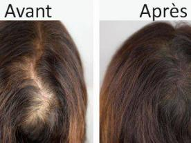 Hormonal hair loss treatment