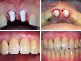 Info, prices & total cost   Zirconia veneers