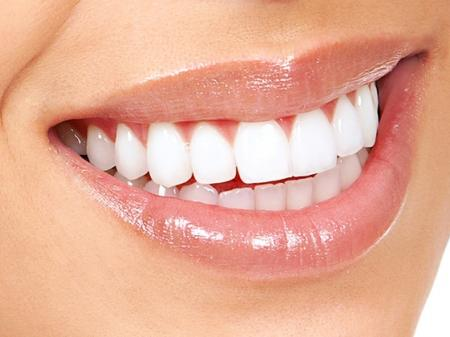 Info, prices & total cost   Teeth whitening