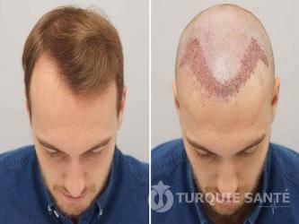 CLINIC HAIR prix pas cher PRP 1
